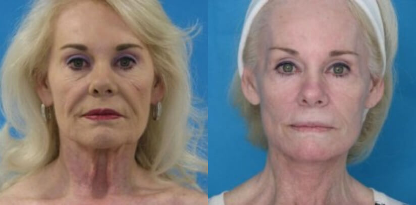 Face Lift Before After M.k