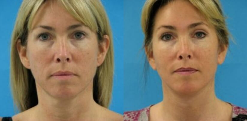 Face Lift Before After R.d