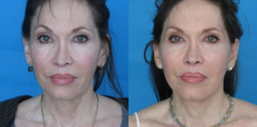 Face Lift Before After S.l