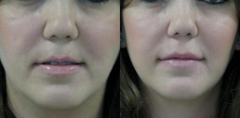 Facial Fillers Before After A.w