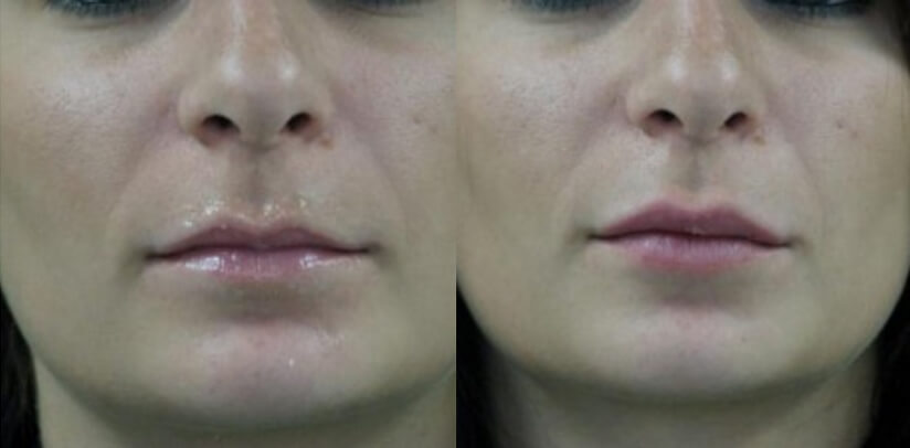 Facial Fillers Before After F.e