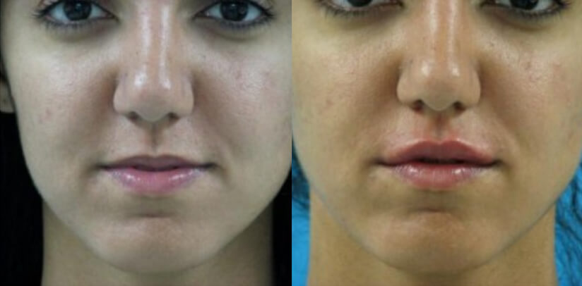 Facial Fillers Before After H.s