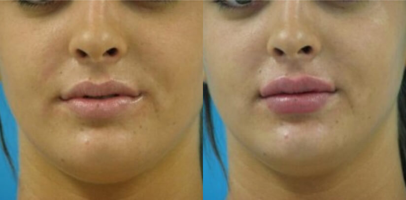 Facial Fillers Before After O.l