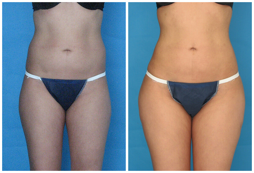Fat Transfer Before After F.l