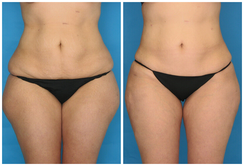 Fat Transfer Before After H.i