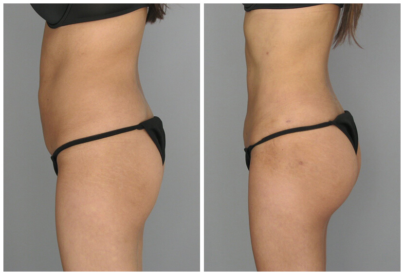 Fat Transfer Before After O.s Q.u3