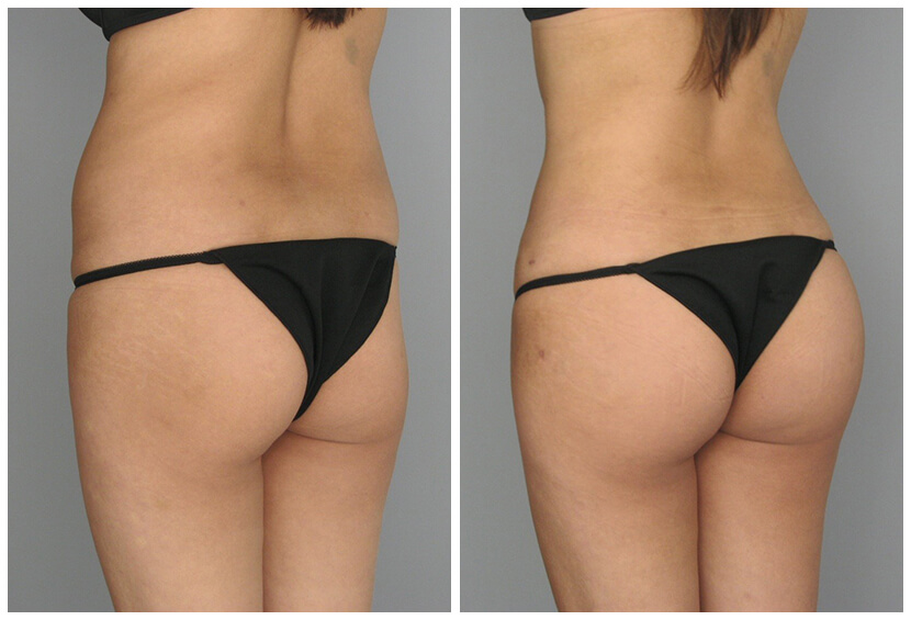 Fat Transfer Before After O.s Q.u4