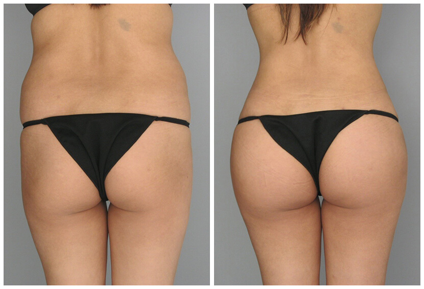 Fat Transfer Before After O.s Q.u5