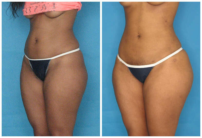 Fat Transfer Before After O.s2
