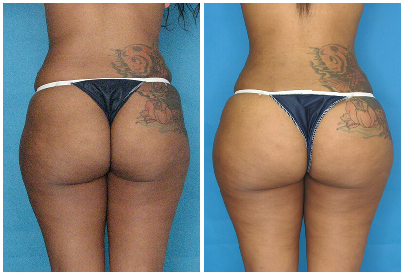 Fat Transfer Before After O.s4