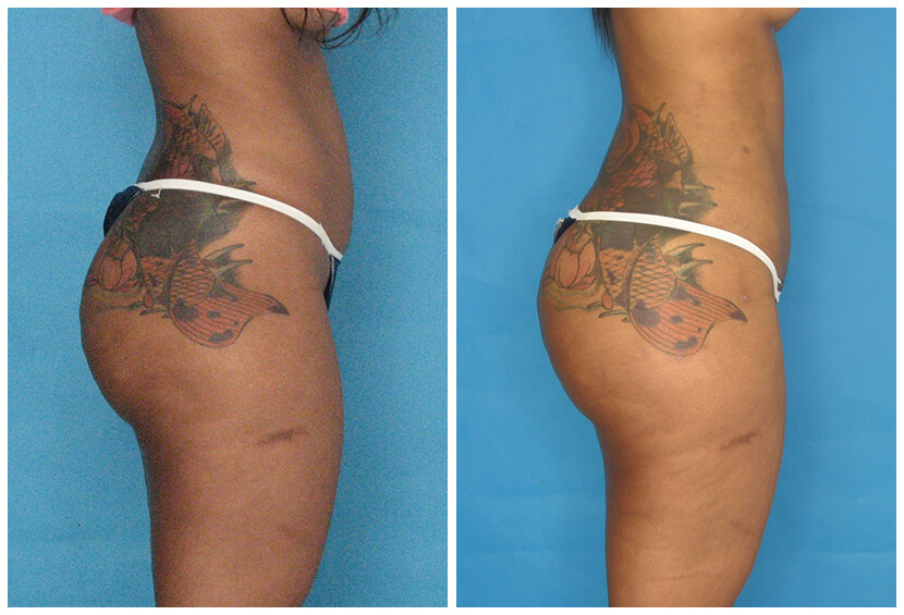 Fat Transfer Before After O.s5