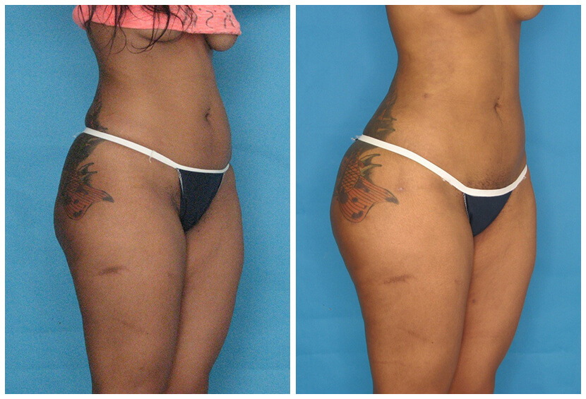 Fat Transfer Before After O.s6
