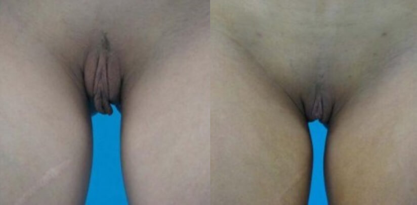 Labiaplasty Before After Surgery H.l
