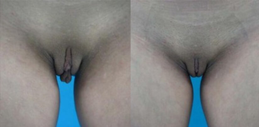 Labiaplasty Before After Surgery T.e