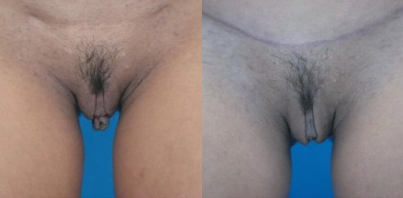 Labiaplasty Before After Surgery V.g