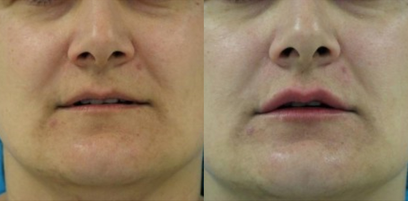 Lip Augmentation Before After R.t