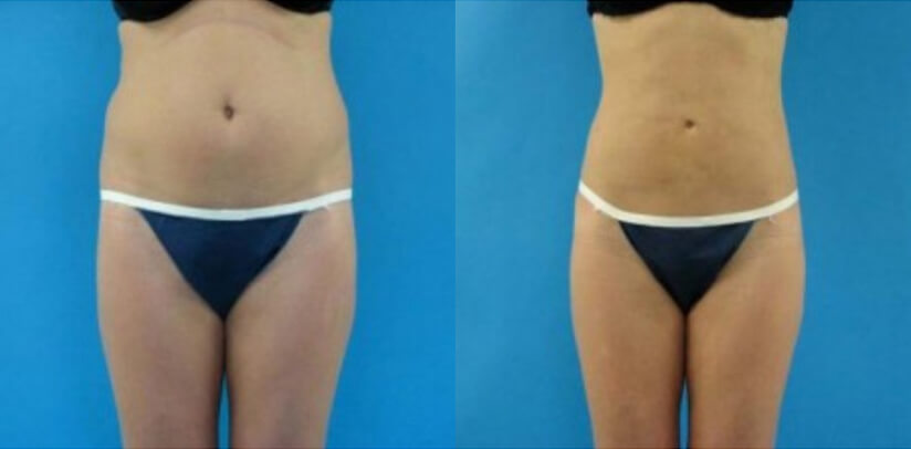 Liposuction Before After G.j