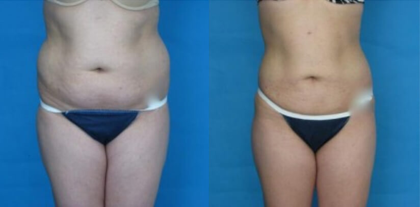 Liposuction Before After K.c