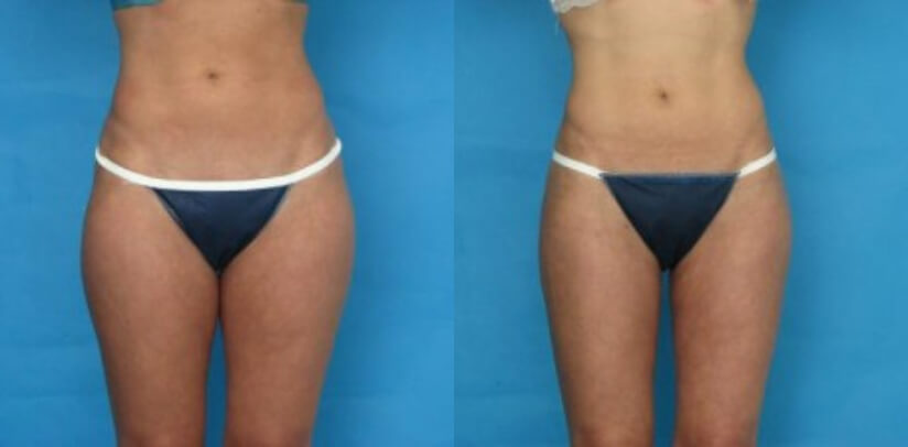 Liposuction Before After M.k