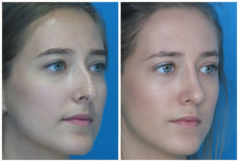 Rhinoplasty Before After Ti1