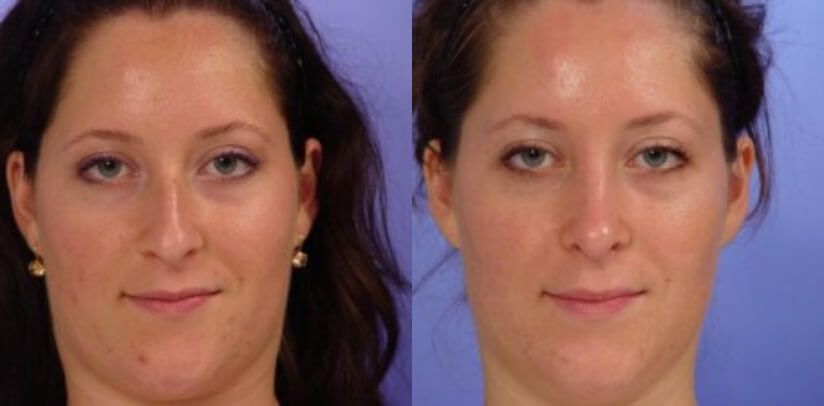 Rhinoplasty Surgery Before After K.l