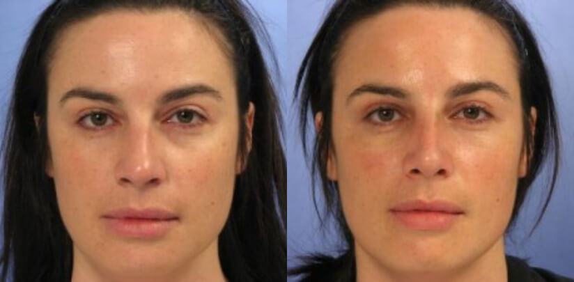 Rhinoplasty Surgery Before After L.d