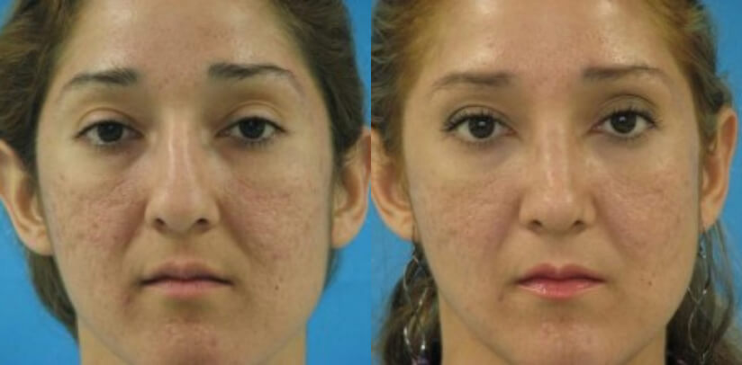 Rhinoplasty Surgery Before After L.j
