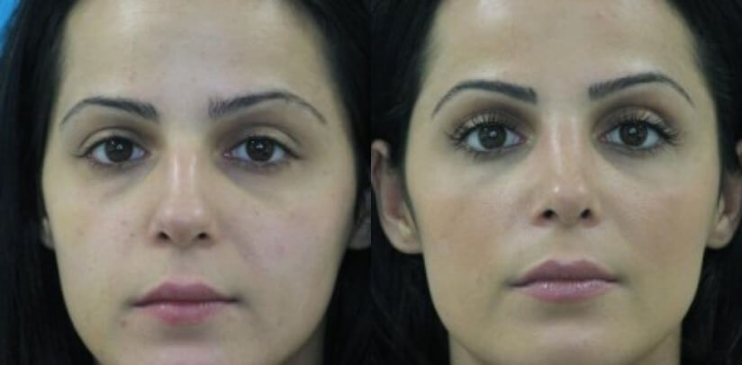 Rhinoplasty Surgery Before After M.p