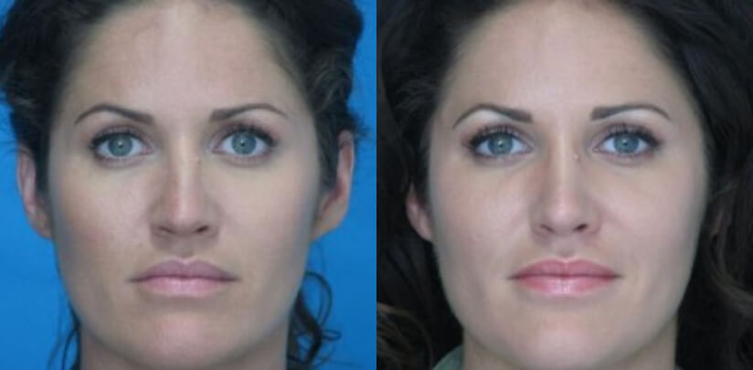 Rhinoplasty Surgery Before After O.p