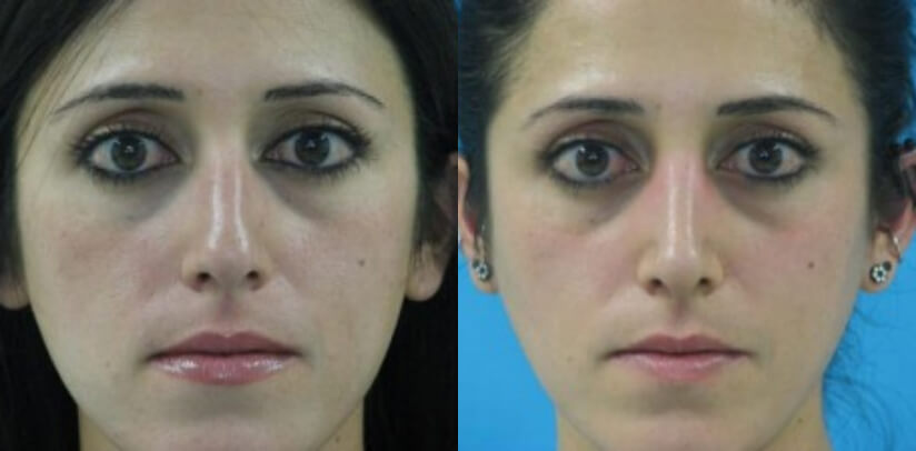 Rhinoplasty Surgery Before After P.e
