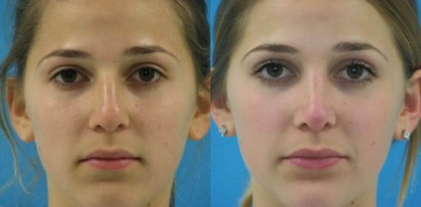 Rhinoplasty Surgery Before After T.g