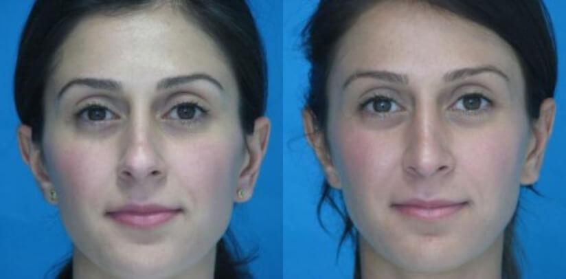 Rhinoplasty Surgery Before After U.f