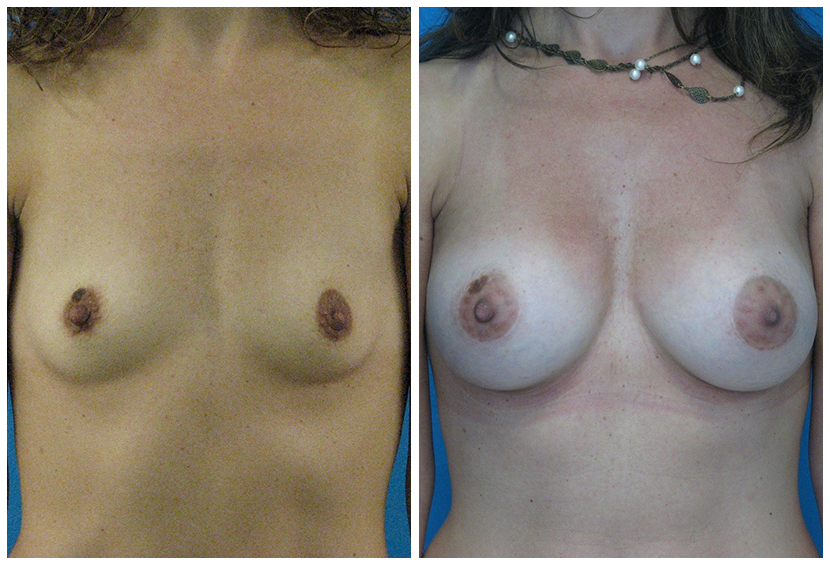 Breast Implants Before After ai