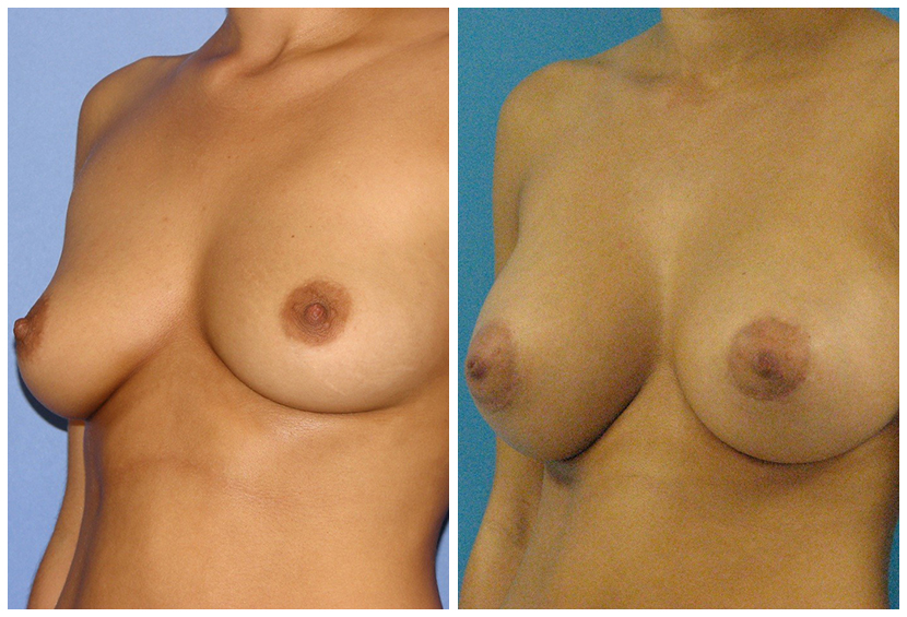 Breast Implants Before After co