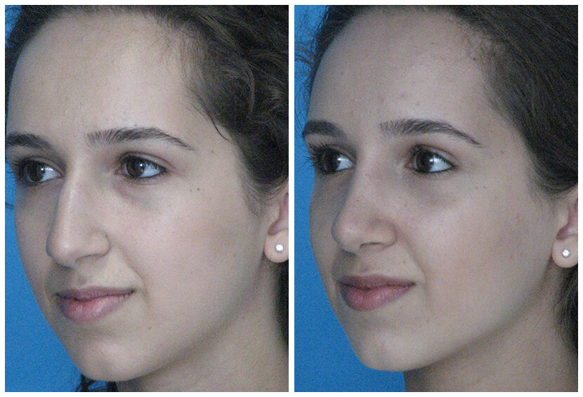 Sal2 Before After