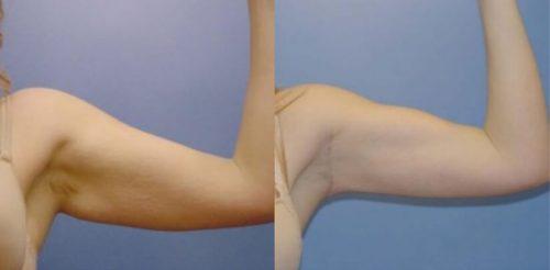 Arm Lift Surgery Before After D.g