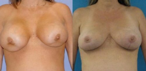 Breast Implant Removal Surgery Before After G.d