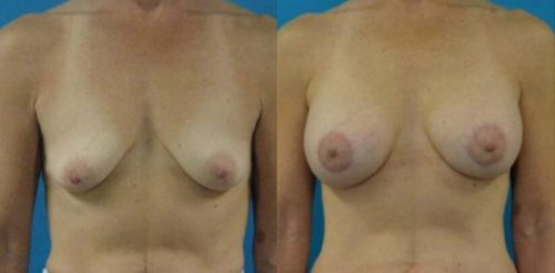 Breast Lift With Augmentation Before After R.e