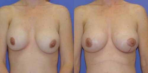 Breast Revision Surgery Before After T.p