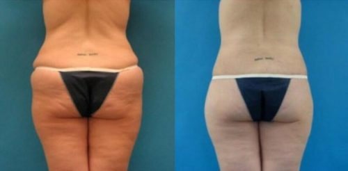 Buttock Lift Before After T.r