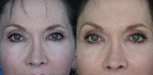 Eyelid Surgery Before After J.p