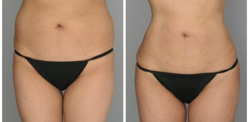 Fat Transfer Before After O.s Q.u