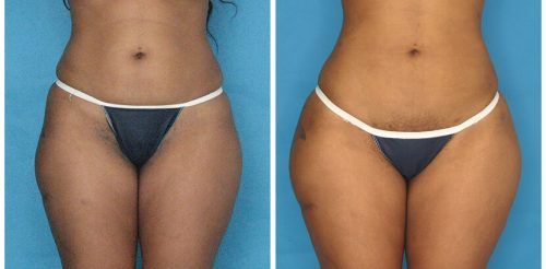 Fat Transfer Before After O.s