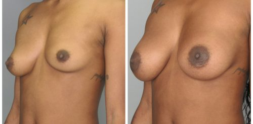 Breast Implants Before After ge