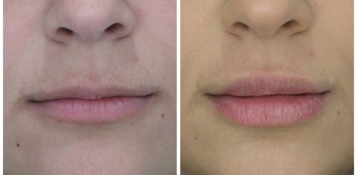 Lip Fillers Before After T.d