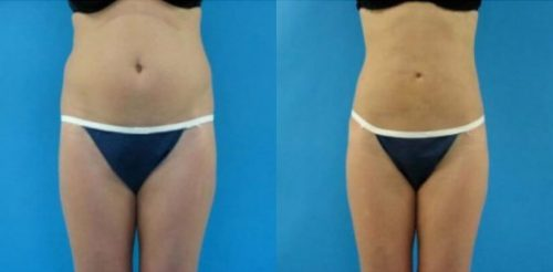 Liposuction Before After A.h