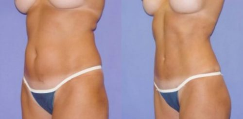 Liposuction Before After D.g