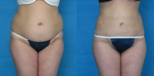 Liposuction Before After E.f