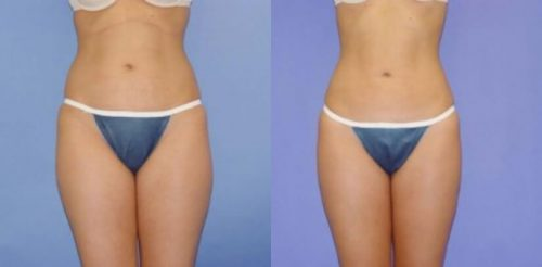 Liposuction Before After F.d