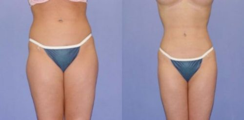 Liposuction Before After H.s